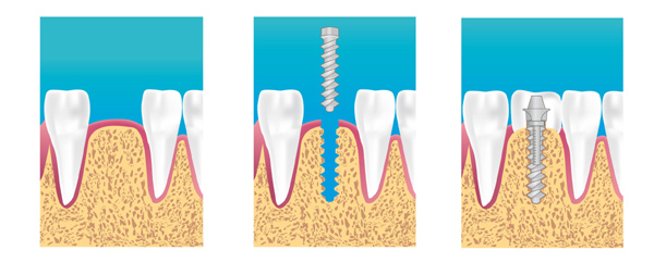 implant dentaire versailles